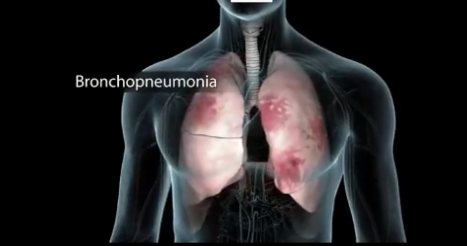 Coronavirus infecting the lungs
